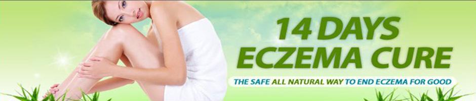 14 Days Eczema Cure