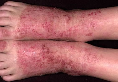 Atopic Eczema Feet
