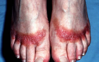 Contact Dermatitis on feet
