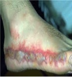 Contact Dermatitis - Irritant Picture 2