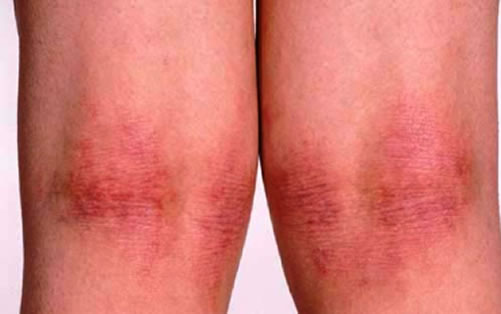 Dyshidrotic eczema on back of knees