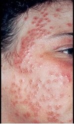 Eczema Herpeticum On The Face