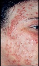 Eczema Herpeticum On The Face