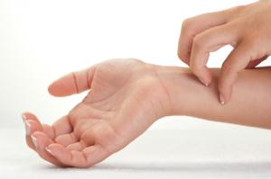 Eczema Itch