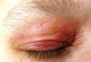 eczema eyelids - photo #15