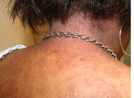 Follicular Eczema On The Back