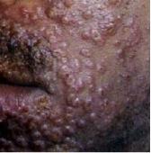 Eczema Herpeticum Picture 2