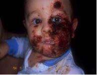 Eczema Herpeticum Picture 3