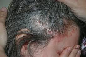 scalp eczema