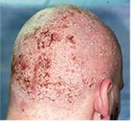 Seborrheic on the back of head