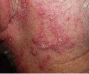 Sebhorreic Eczema Picture 1