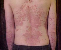Eczema On Back